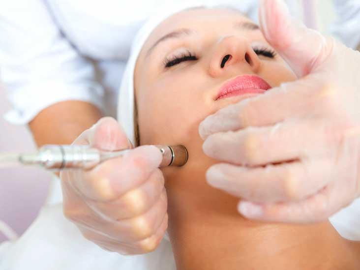 microdermabrasion treatment Toronto